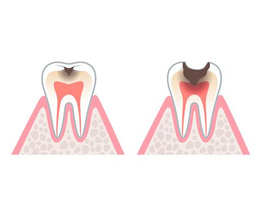 hinboca clínica dental, tratamientos dentales, endodoncia