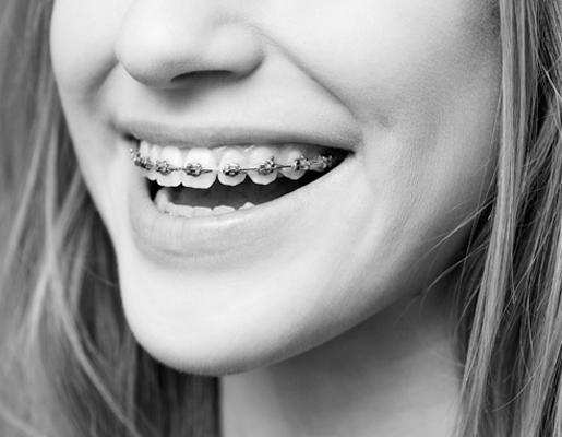 hinboca clínica dental, tratamientos dentales, ortodoncia en aluche
