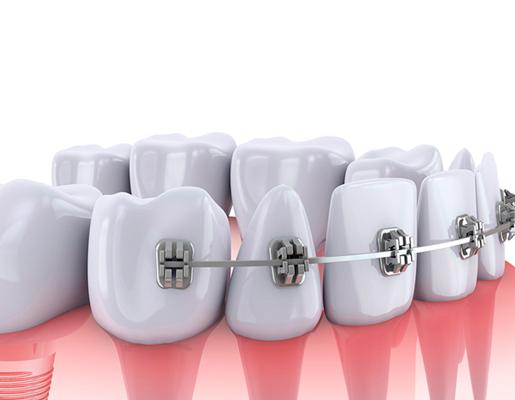 hinboca clínica dental, tratamientos dentales, ortodoncia