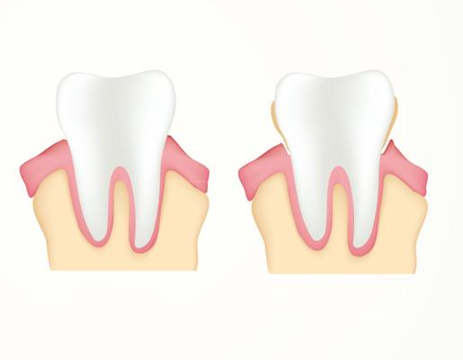 hinboca clinica dental, tratamientos dentales periodoncia