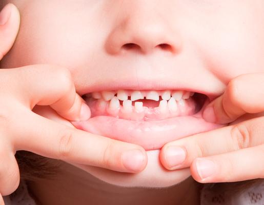 hinboca clinica dental,tratamientos, odontopediatría