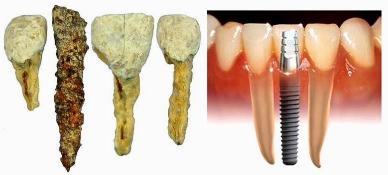 Evolución de la odontología.Implantes dentales en Aluche